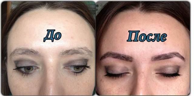 тридинг до и после фото