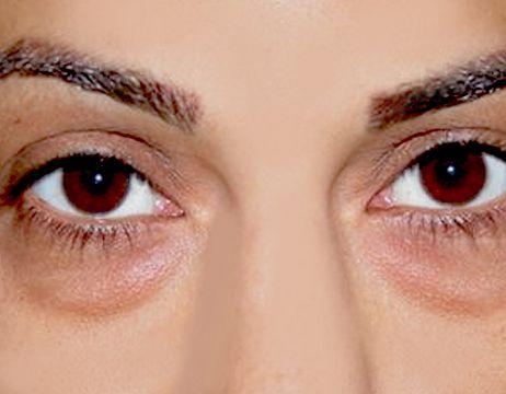 eye-circles-1100x858