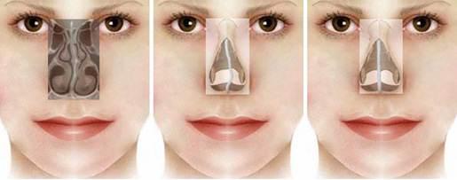 виды искривления перегородки носа
