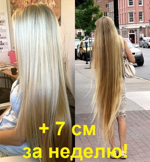 Как отрастить волосы за месяц в домашних условиях