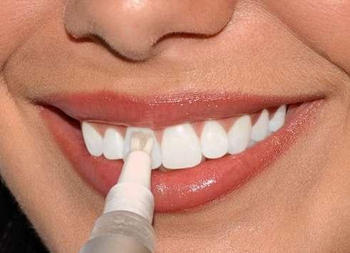 sredstva-dlya-otbelivaniya-zubov