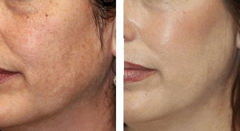 Пилинг для лица в салоне отзывы фото до и после