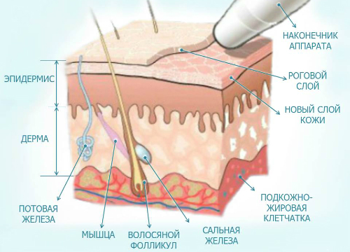 mikrodermabrazia-2