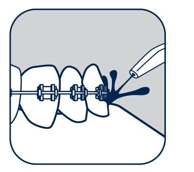 «Асепта» – ирригационный дезинфицирующий раствор (концентрат)