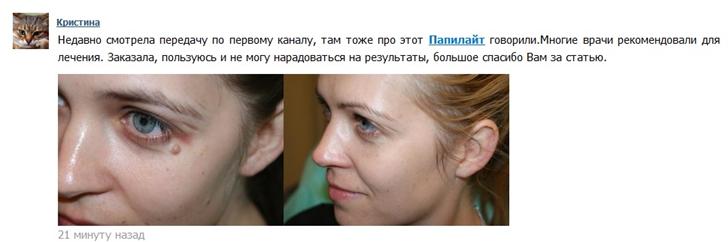 Современное решение проблем с бородавками и папилломами – Папилайт