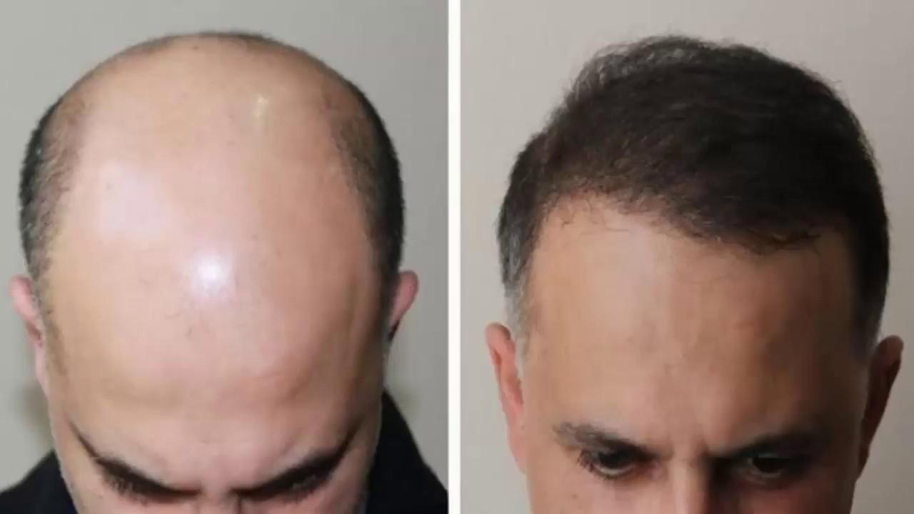 Миноксидил: скажите «нет» выпадению волос