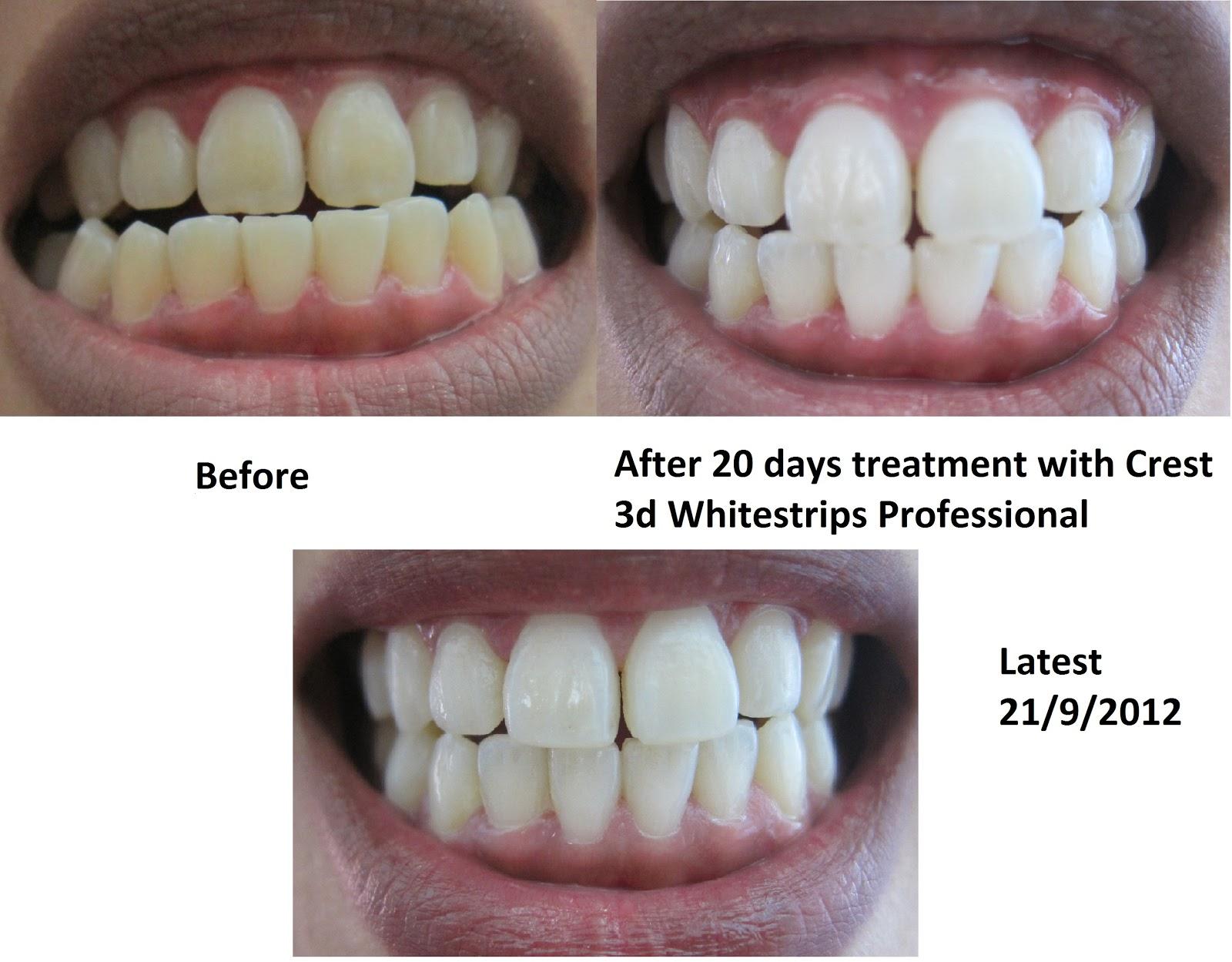 Crest 3d White – сияющая улыбка при минимуме усилий