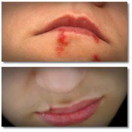 Миниатюра к статье Лечение простуды (герпеса) на губах в домашних условиях